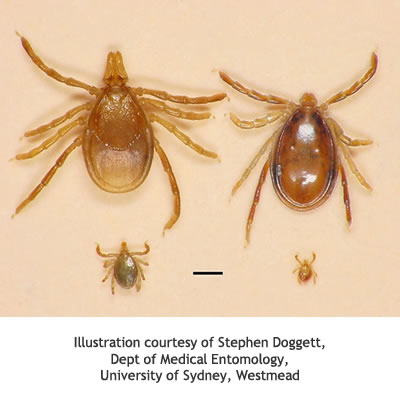insect allergy australasian society of clinical immunology Australian Paralysis Tick Diagram increase in number of paralysis tick